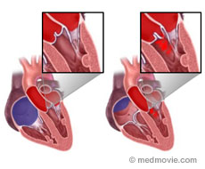 Heart Diseases | See My Heart American Society of Echocardiography