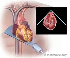 Heart Ultrasound | See My Heart American Society of Echocardiography